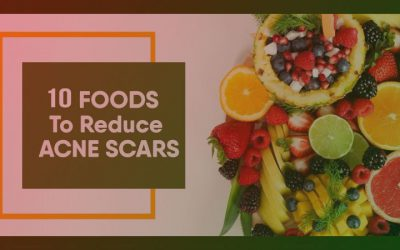 10 Foods to Reduce Acne Scars